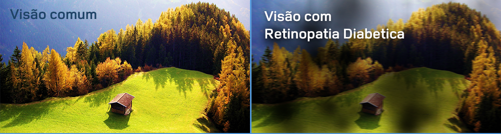 08b-retinopatia