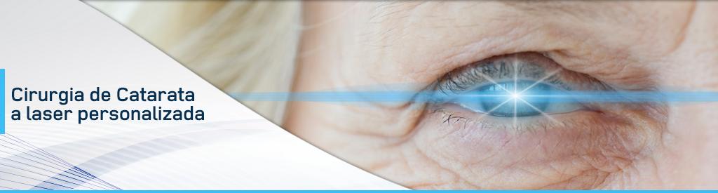 Cirurgia de Catarata a Laser Personalizada